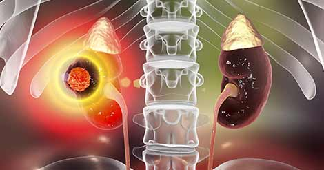 Know Everything about Chronic Kidney Diseases